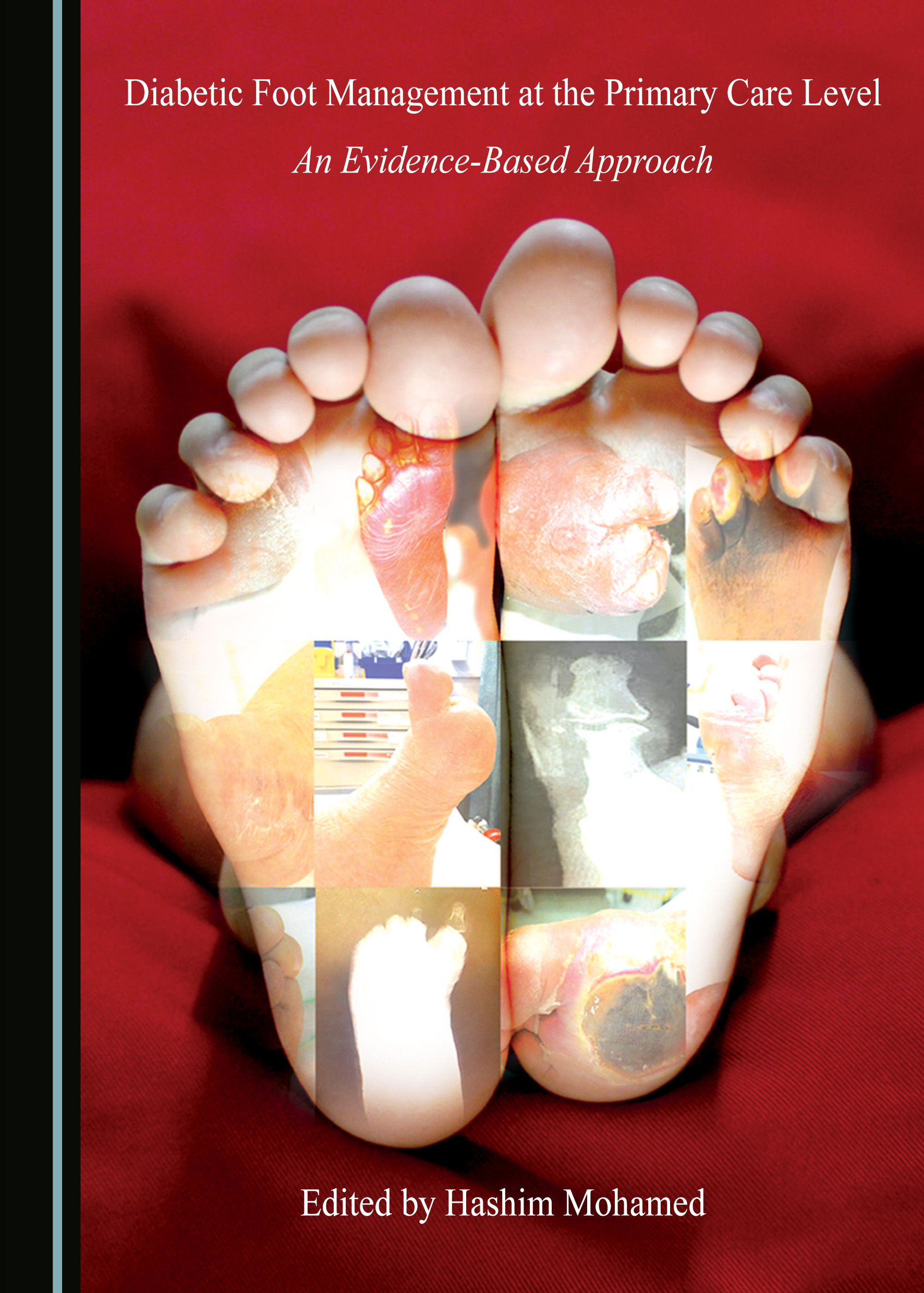 Diabetic Foot Management at the Primary Care Level: An Evidence-Based Approach