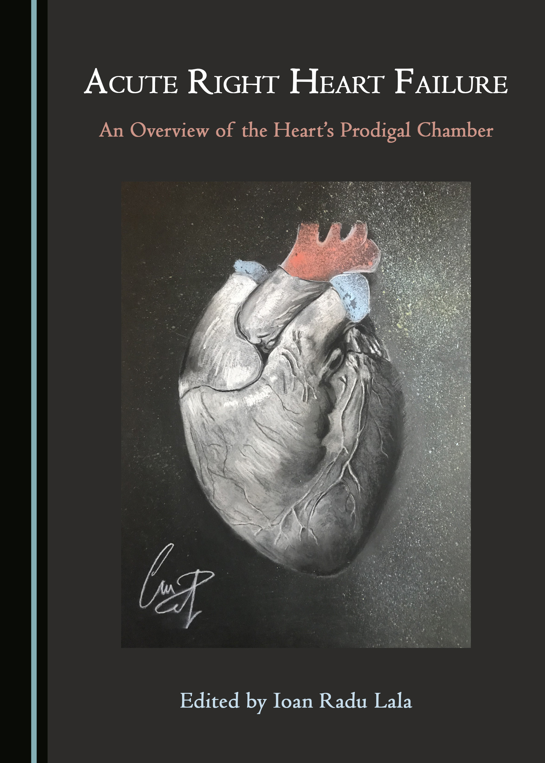 Acute Right Heart Failure: An Overview of the Heart's Prodigal Chamber